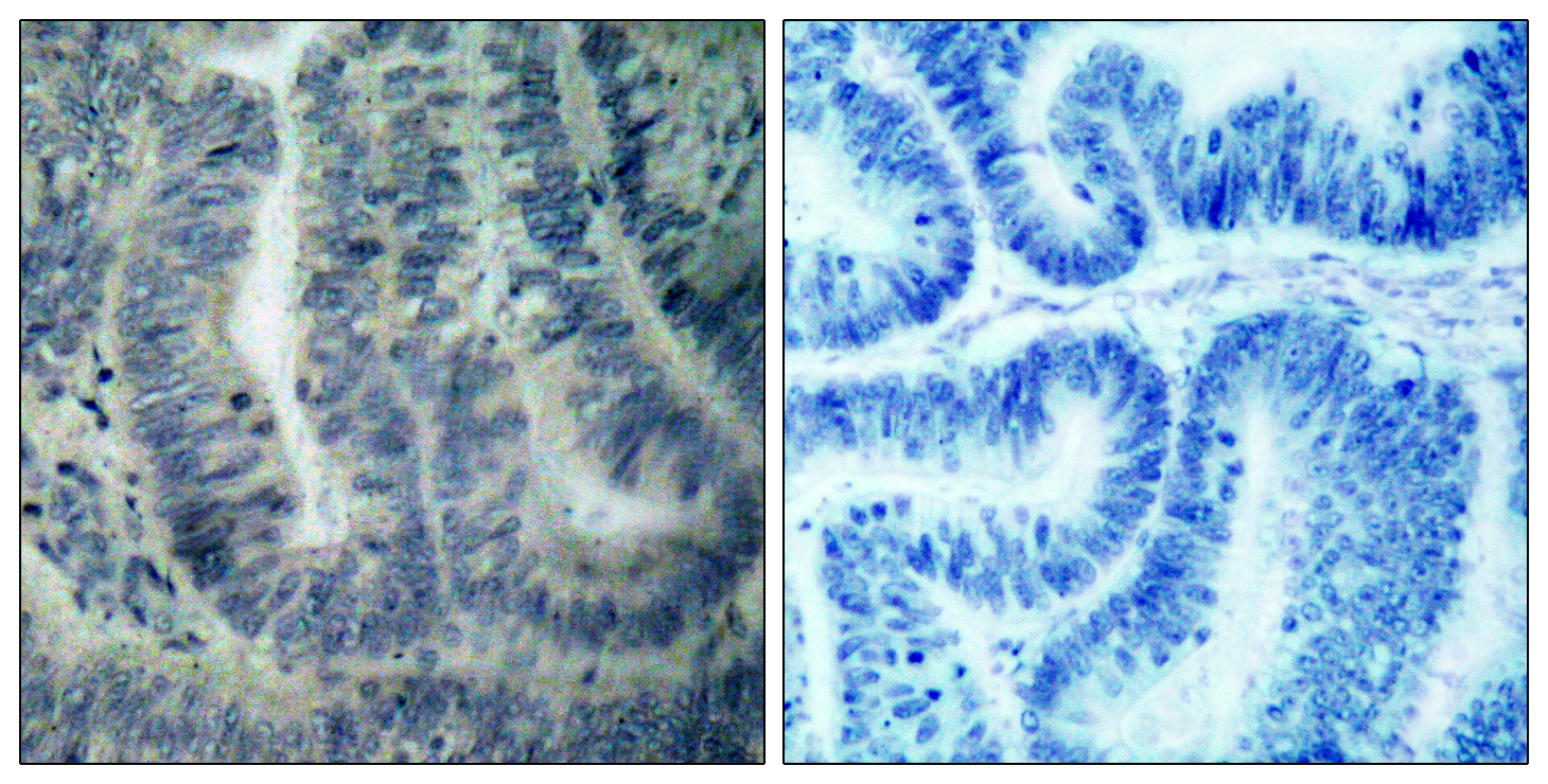 BAD Antibody (OAAF01245) in Human colon carcinoma cells using Immunohistochemistry