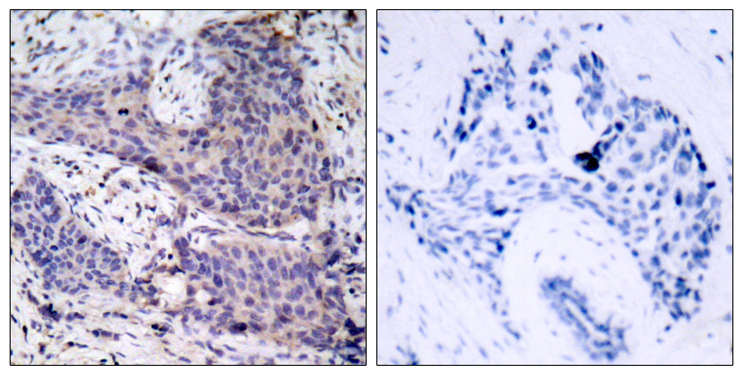BAD Antibody (OAAF01246) in Human breast carcinoma cells using Immunohistochemistry