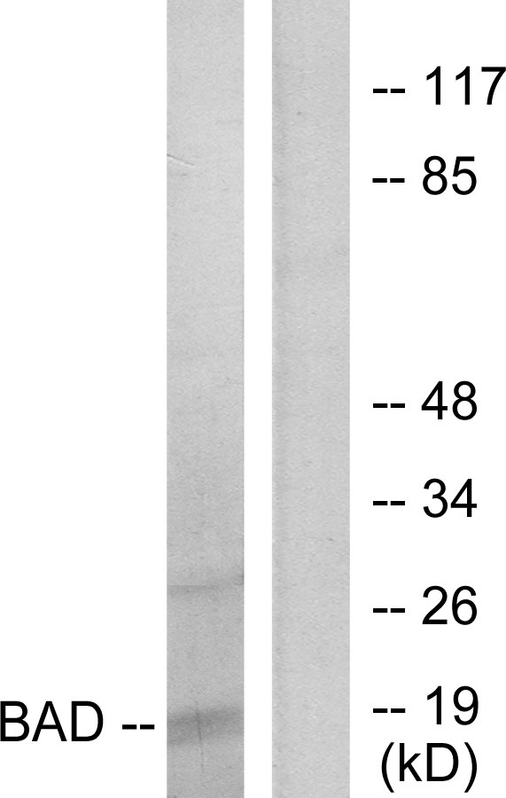 BAD Antibody (OAAF01246) in 293 cells using Western Blot