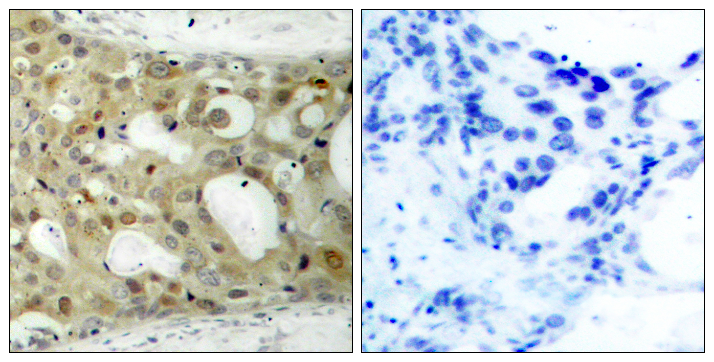 BCL2 Antibody (OAAF01247) in Human breast carcinoma cells using Immunohistochemistry