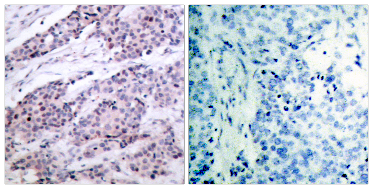 BCL2 Antibody (OAAF01248) in Human breast carcinoma cells using Immunohistochemistry