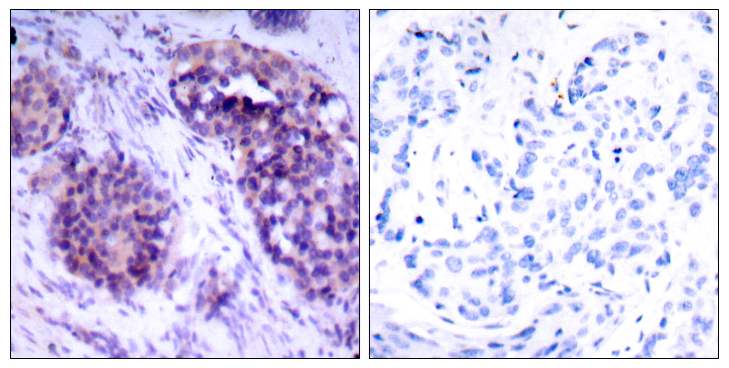 BCL2L1 Antibody (OAAF01249) in Human breast carcinoma cells using Immunohistochemistry