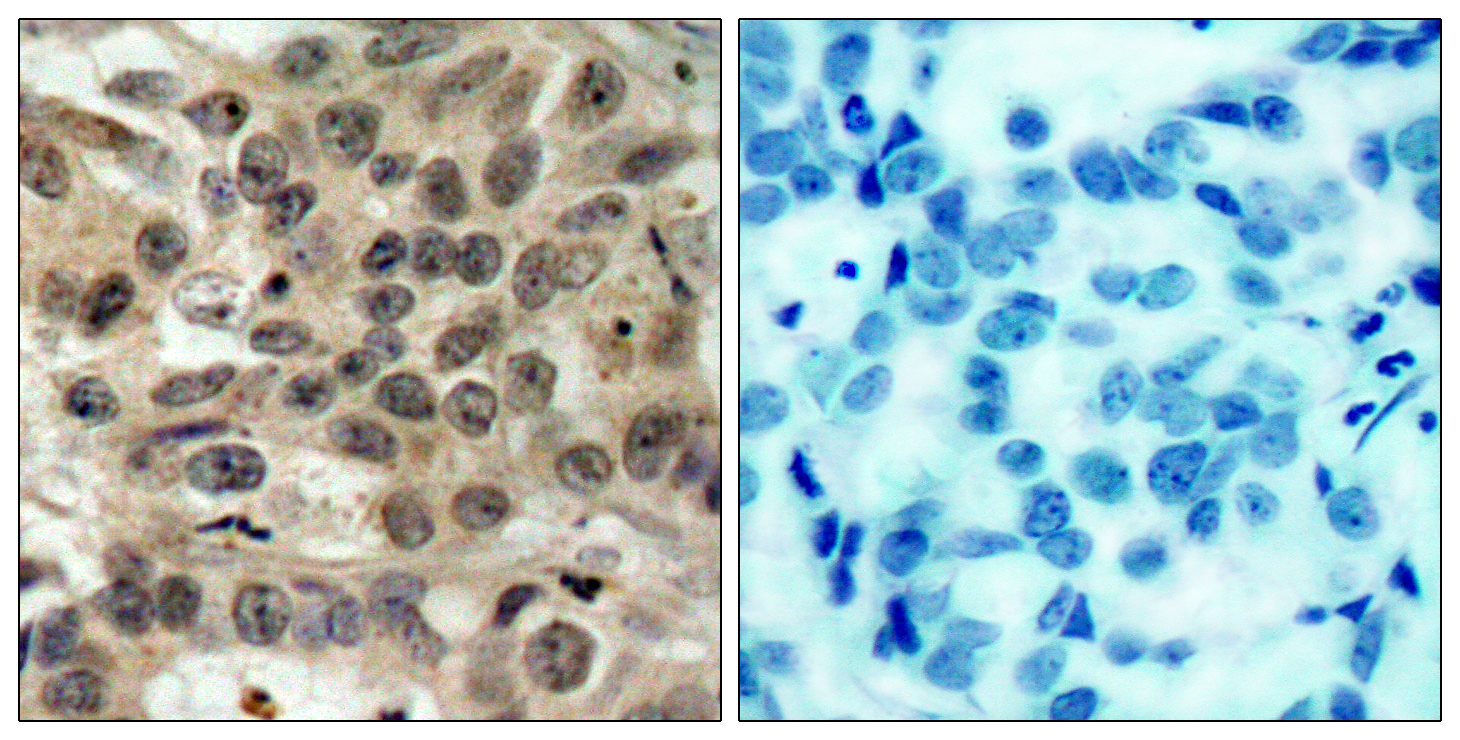 CDC25C Antibody (OAAF01258) in Human breast carcinoma cells using Immunohistochemistry