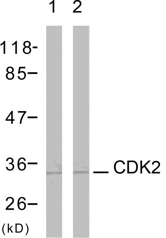 CDK2 Antibody (OAAF01259) in A2780 cells using Western Blot
