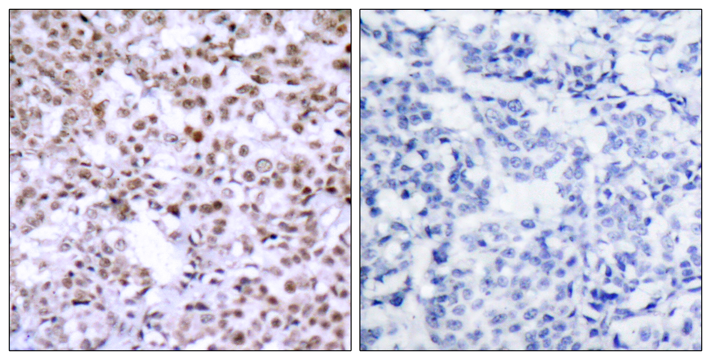 CHEK2 Antibody (OAAF01264) in Human breast carcinoma cells using Immunohistochemistry