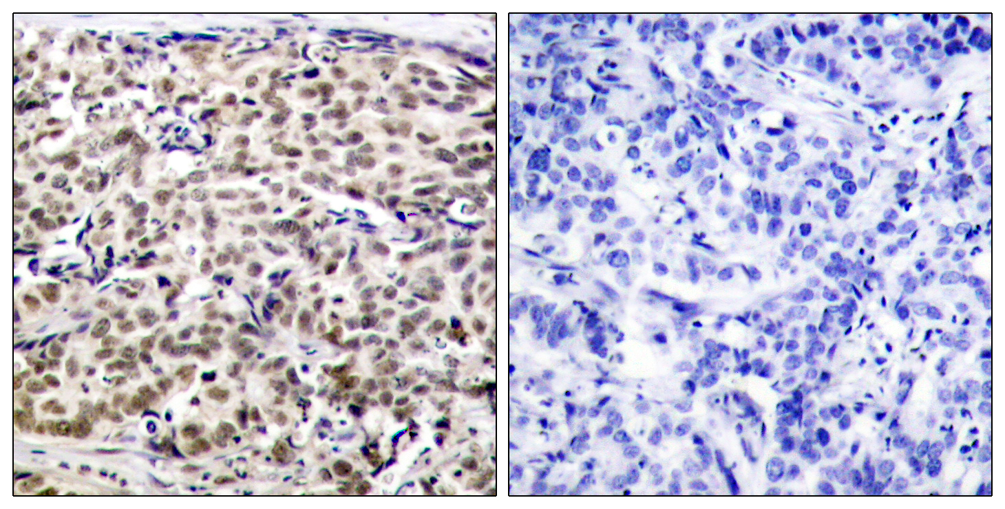 CREB1 Antibody (OAAF01272) in Human breast carcinoma cells using Immunohistochemistry