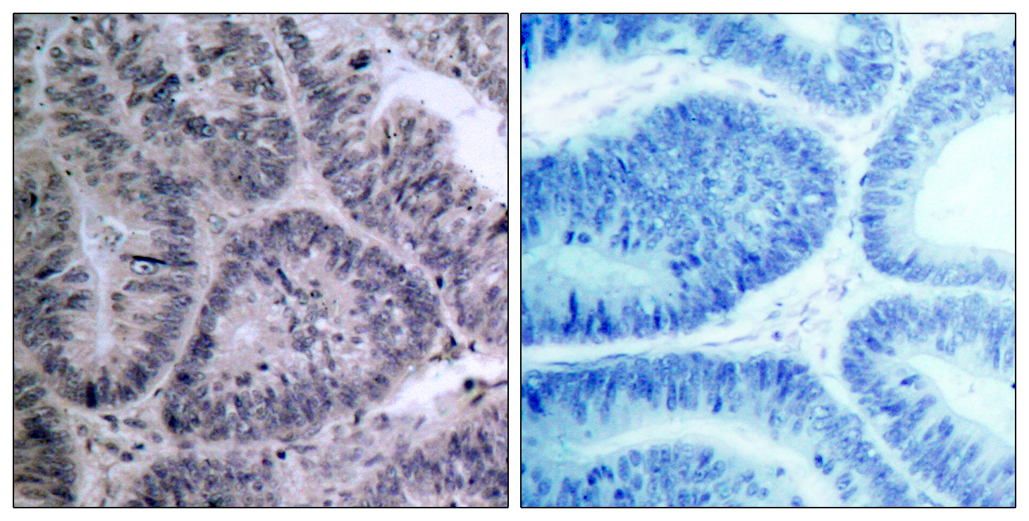 CHUK Antibody (OAAF01336) in Human colon carcinoma cells using Immunohistochemistry