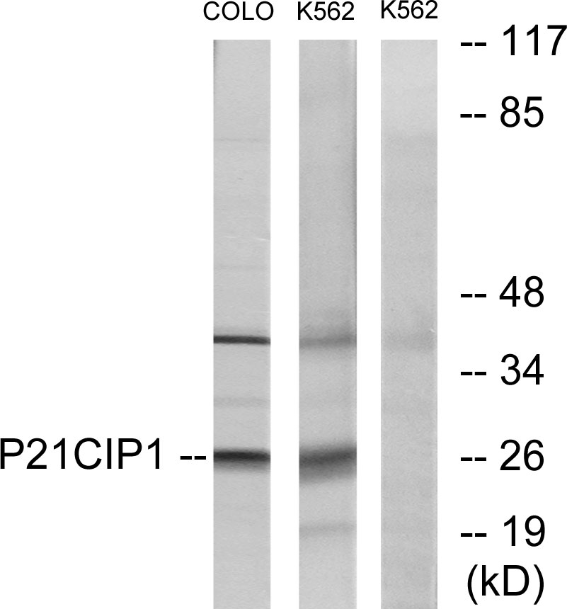 CDKN1A Antibody (OAAF01394) in COLO, K562 cells using Western Blot