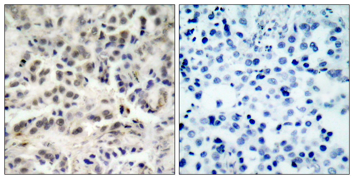 CDKN1B Antibody (OAAF01395) in Human lung carcinoma cells using Immunohistochemistry