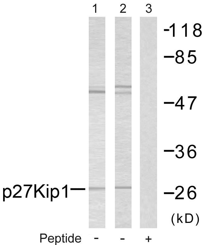 CDKN1B Antibody (OAAF01395) in A2780 cells using Western Blot