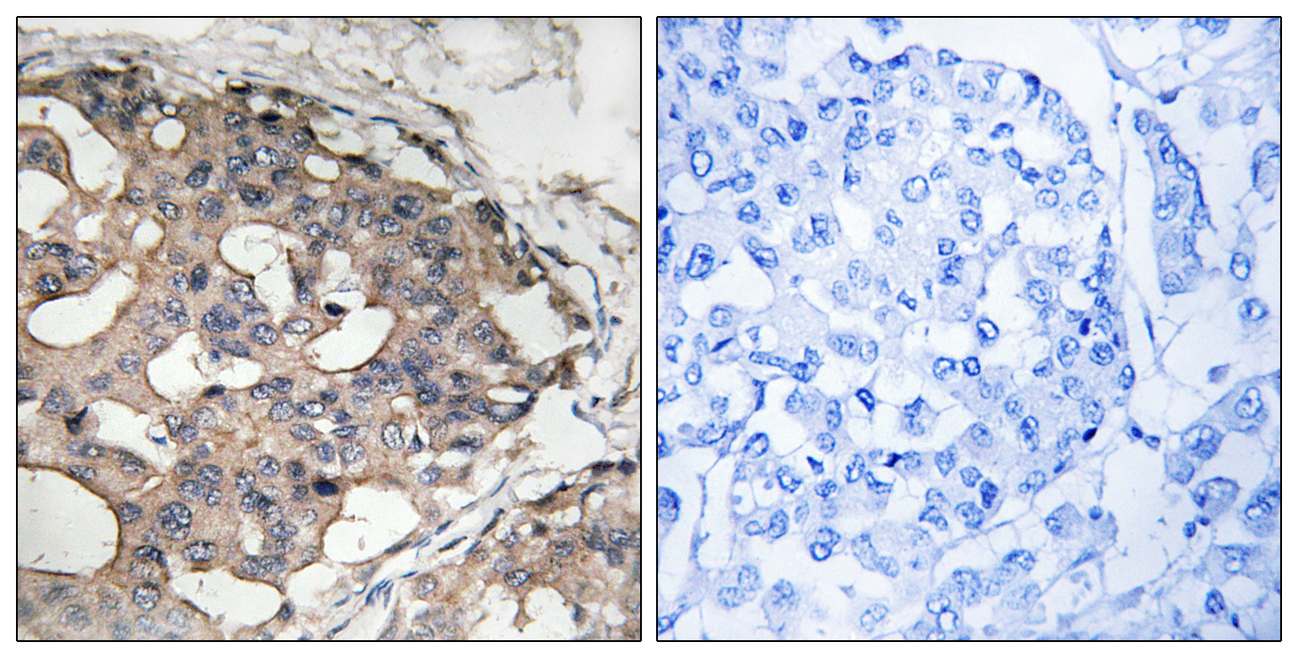 BRAF Antibody (OAAF01514) in Human breast carcinoma cells using Immunohistochemistry