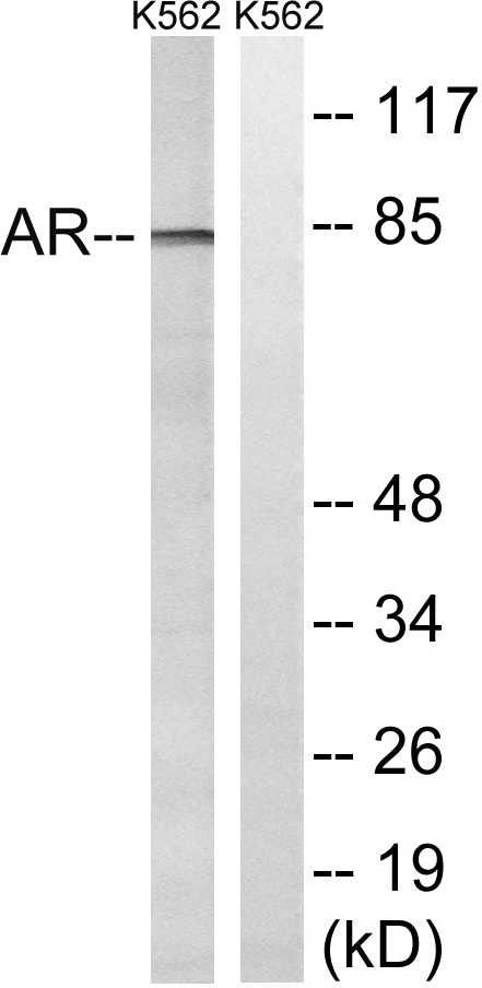 AR Antibody (OAAF01569) in K562 cells using Western Blot