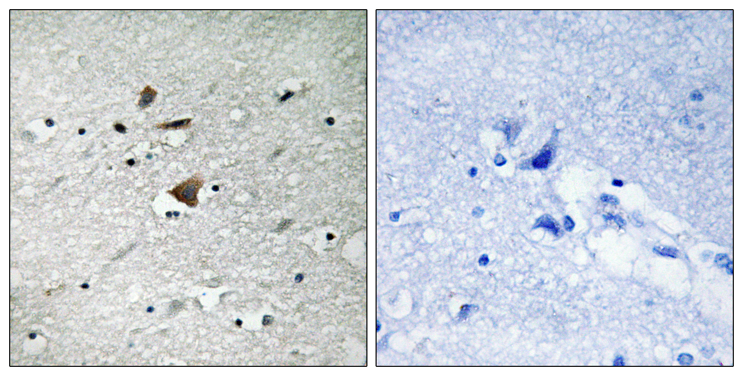 ANAPC1 Antibody (OAAF01588) in Human brain cells using Immunohistochemistry