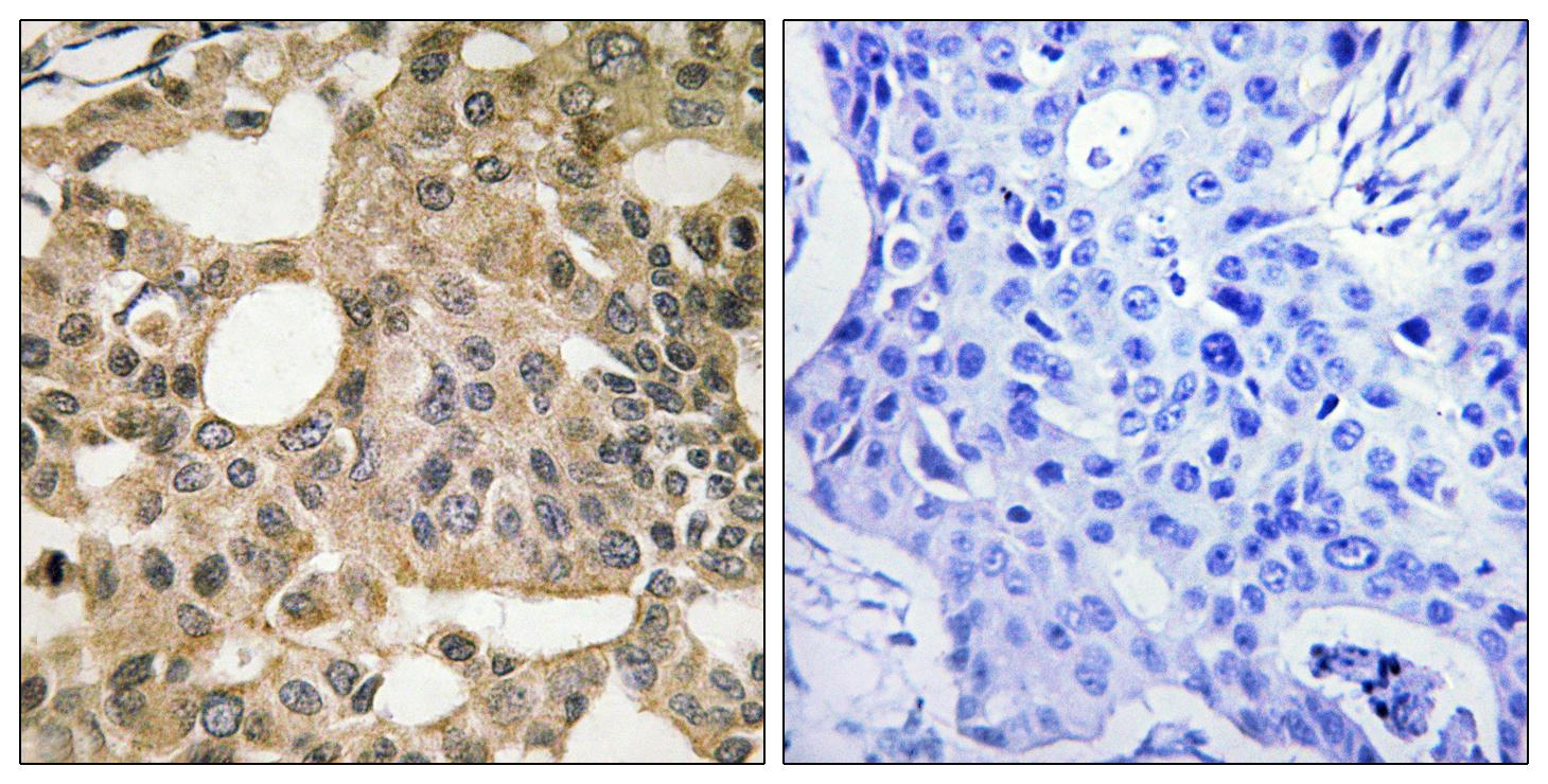 BCL2L1 Antibody (OAAF01589) in Human breast carcinoma cells using Immunohistochemistry