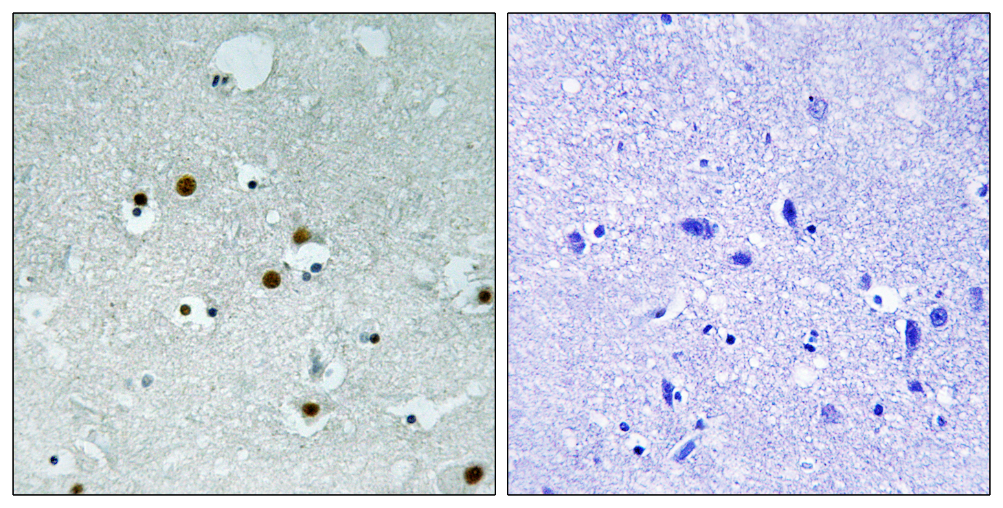 CBX5 Antibody (OAAF01597) in Human braina cells using Immunohistochemistry