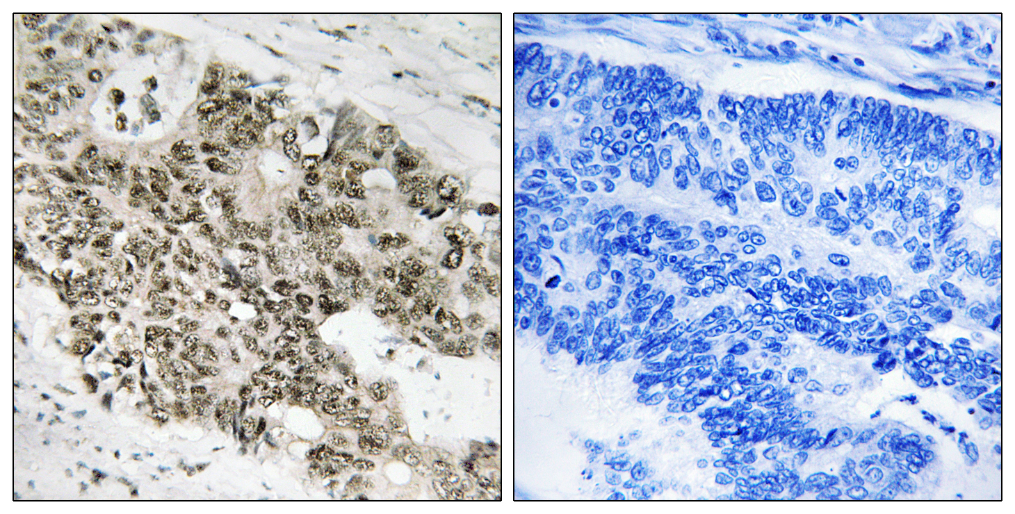ATR Antibody (OAAF01599) in Human colon carcinoma cells using Immunohistochemistry