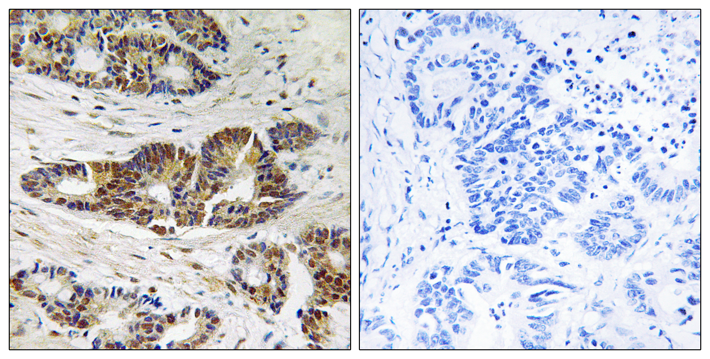 ADRBK1 Antibody (OAAF01601) in Human colon carcinoma cells using Immunohistochemistry