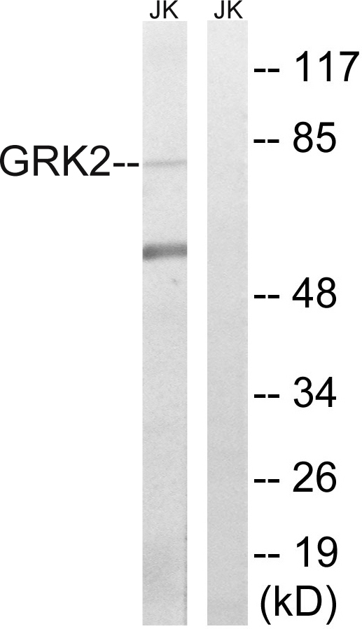 ADRBK1 Antibody (OAAF01601) in Jurkat cells using Western Blot