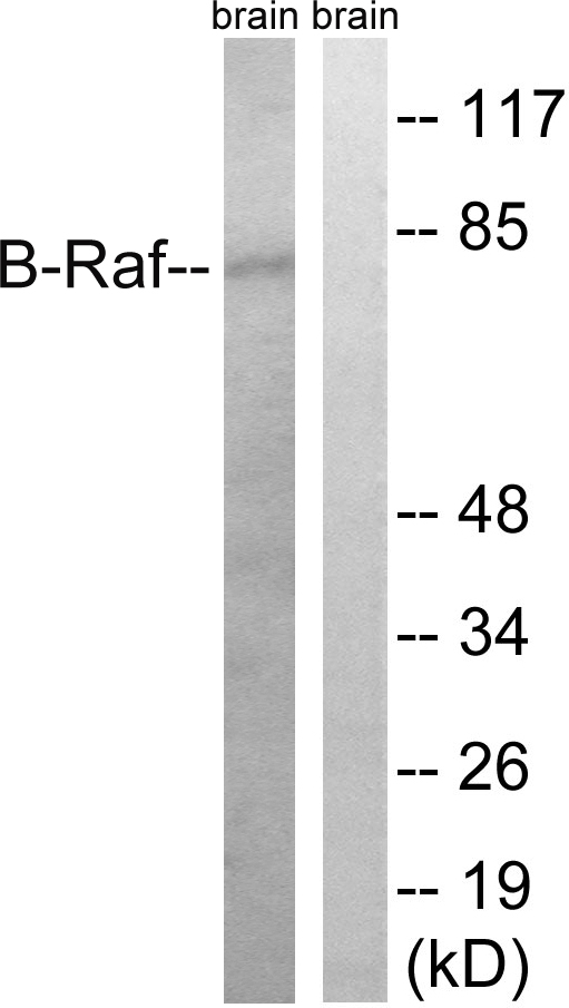 BRAF Antibody (OAAF01616) in Rat brain cells using Western Blot
