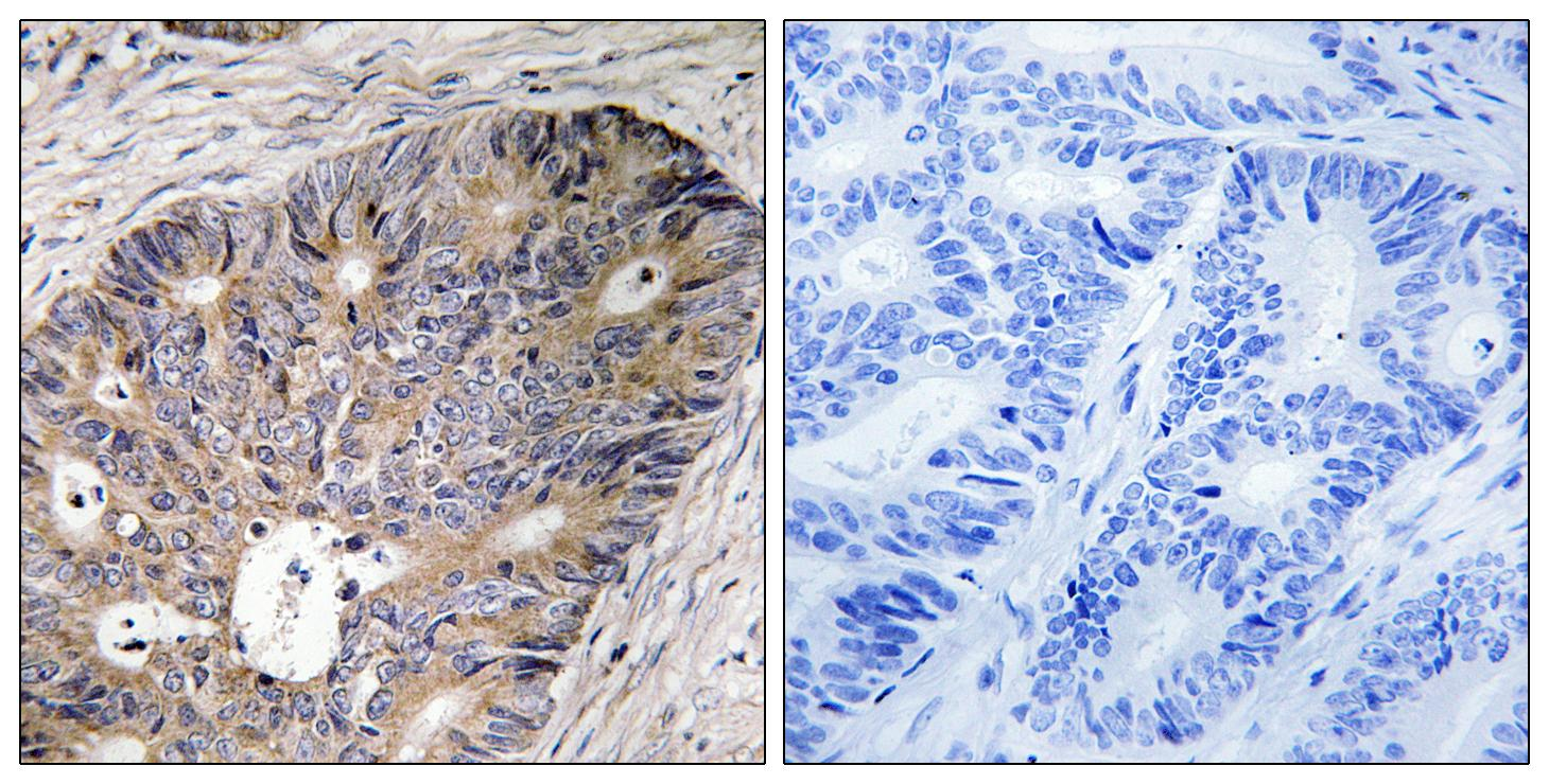 CAD Antibody (OAAF01618) in Human colon carcinoma cells using Immunohistochemistry
