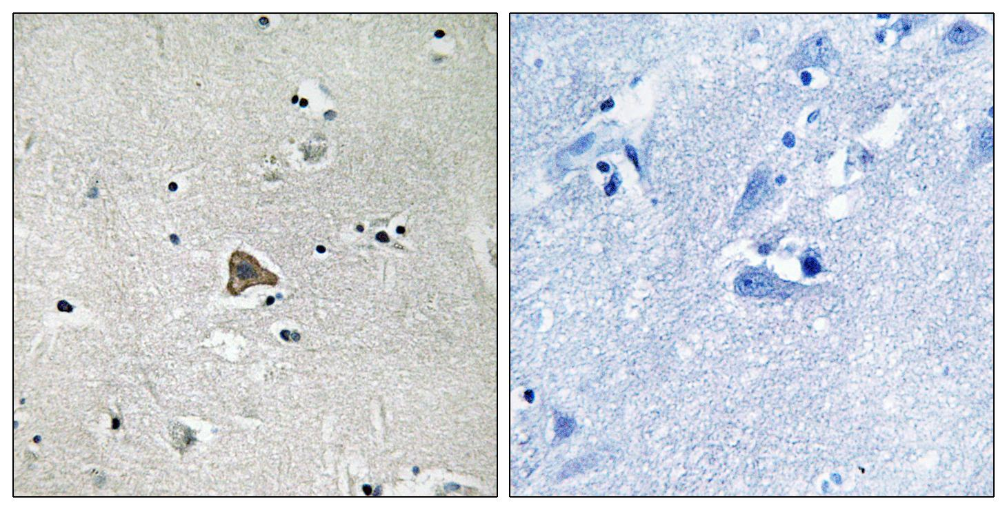 CLDN4 Antibody (OAAF01623) in Human brain cells using Immunohistochemistry