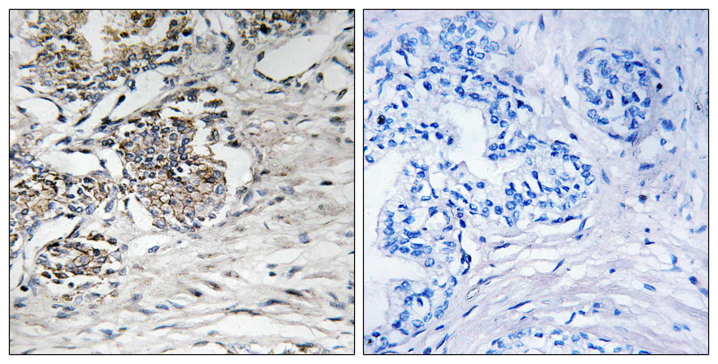 CLDN7 Antibody (OAAF01624) in Human prostate carcinoma cells using Immunohistochemistry