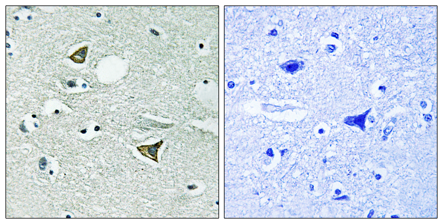 CCDC88A Antibody (OAAF01637) in Human brain cells using Immunohistochemistry