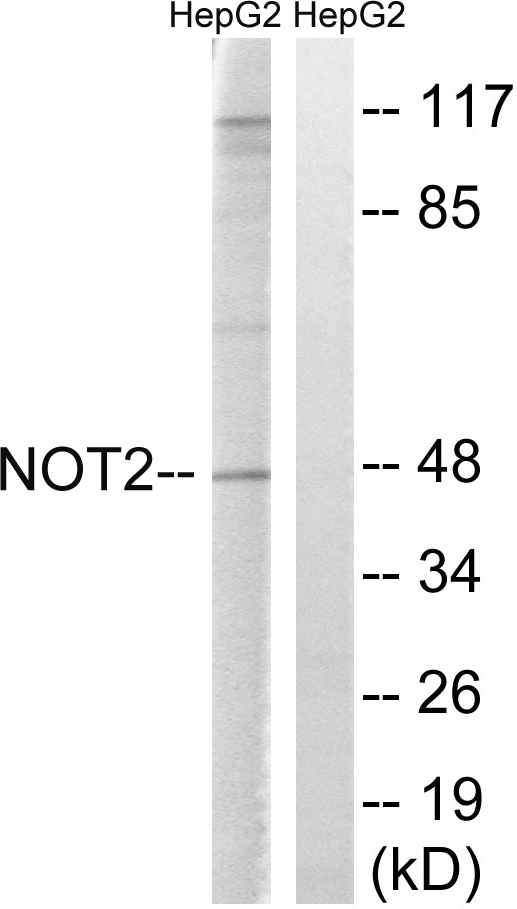 CNOT2 Antibody (OAAF01653) in HepG2 cells using Western Blot