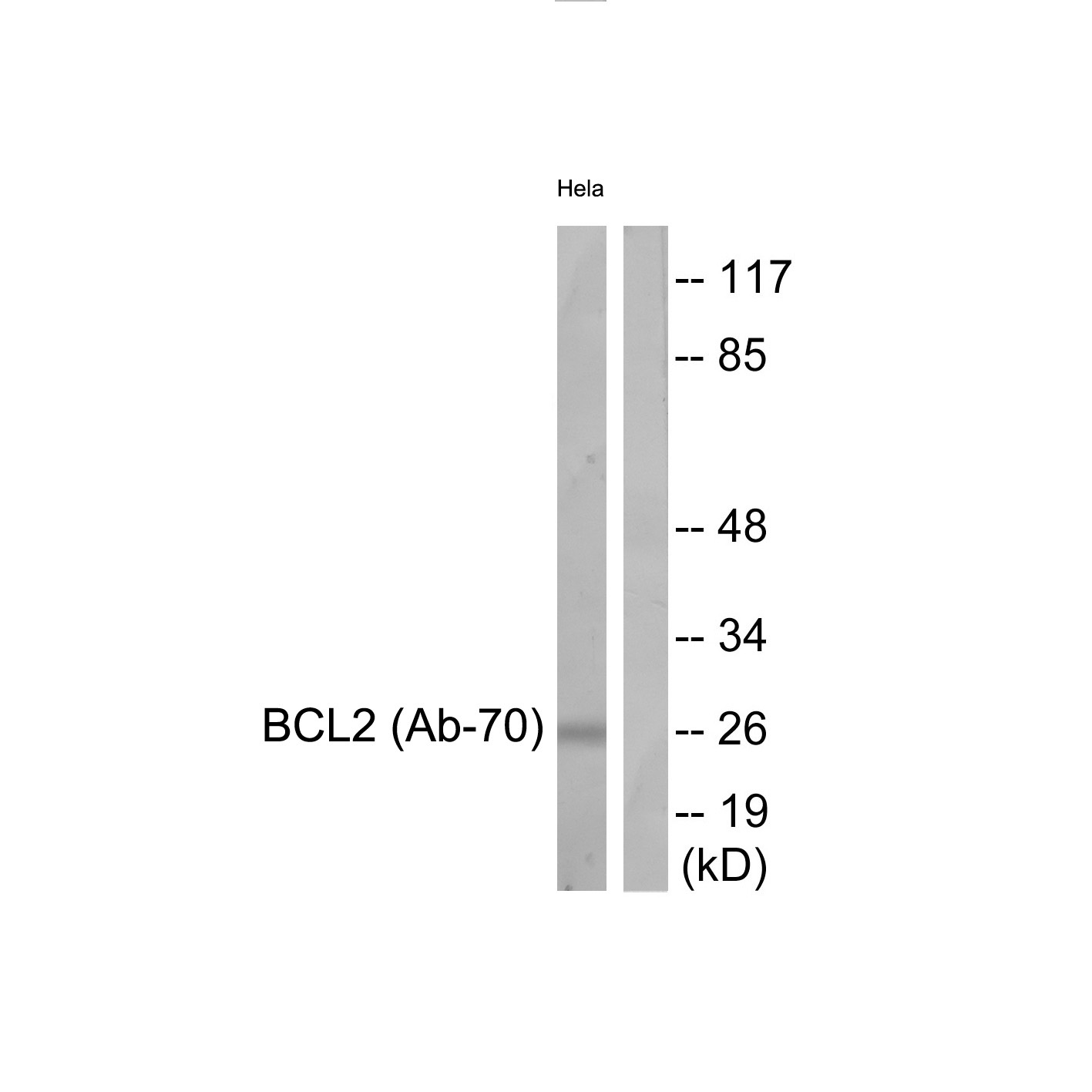 BCL2 Antibody (OAAF01690) in HeLa cells using Western Blot
