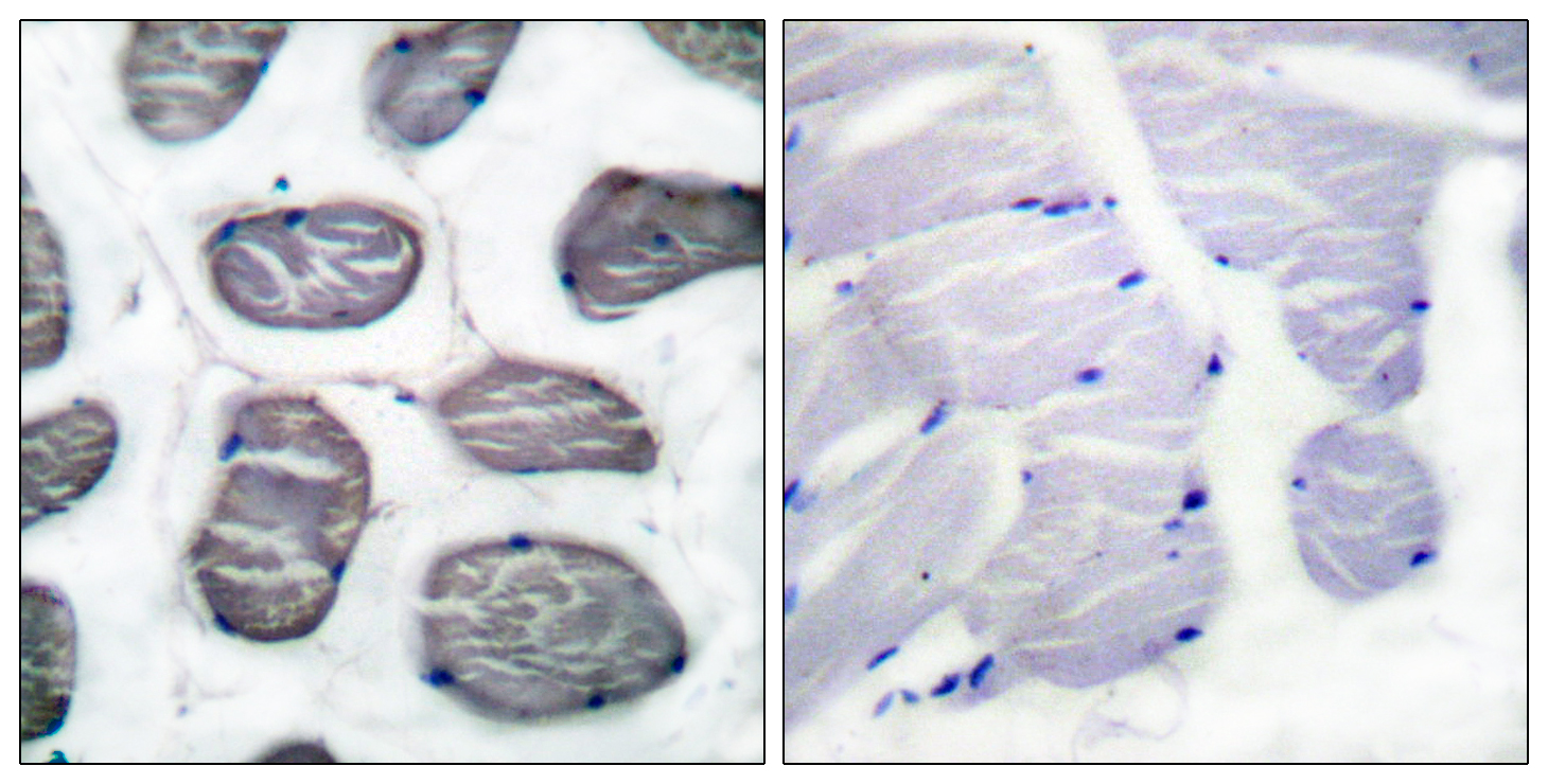 ACTA1 Antibody (OAAF01727) in Human muscle cells using Immunohistochemistry