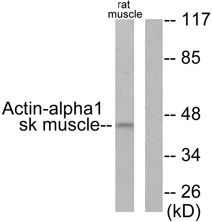 ACTA1 Antibody (OAAF01727) in LOVO cells using Western Blot