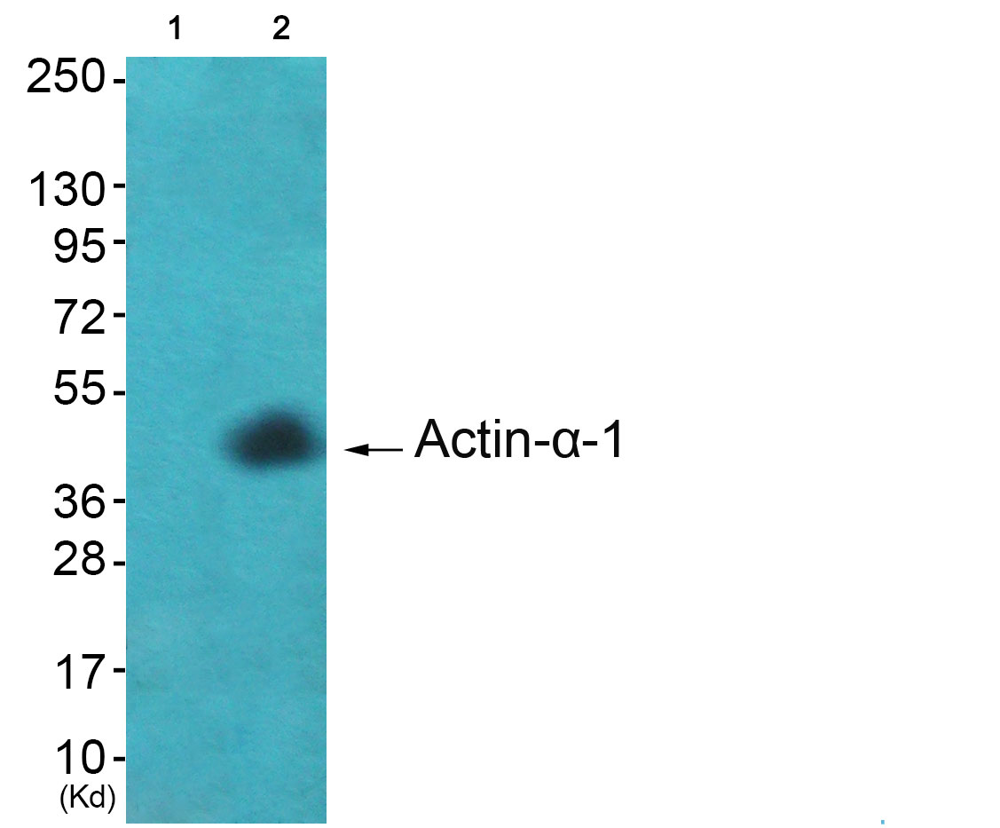 ACTA1 Antibody (OAAF01727) in A549 cells using Western Blot
