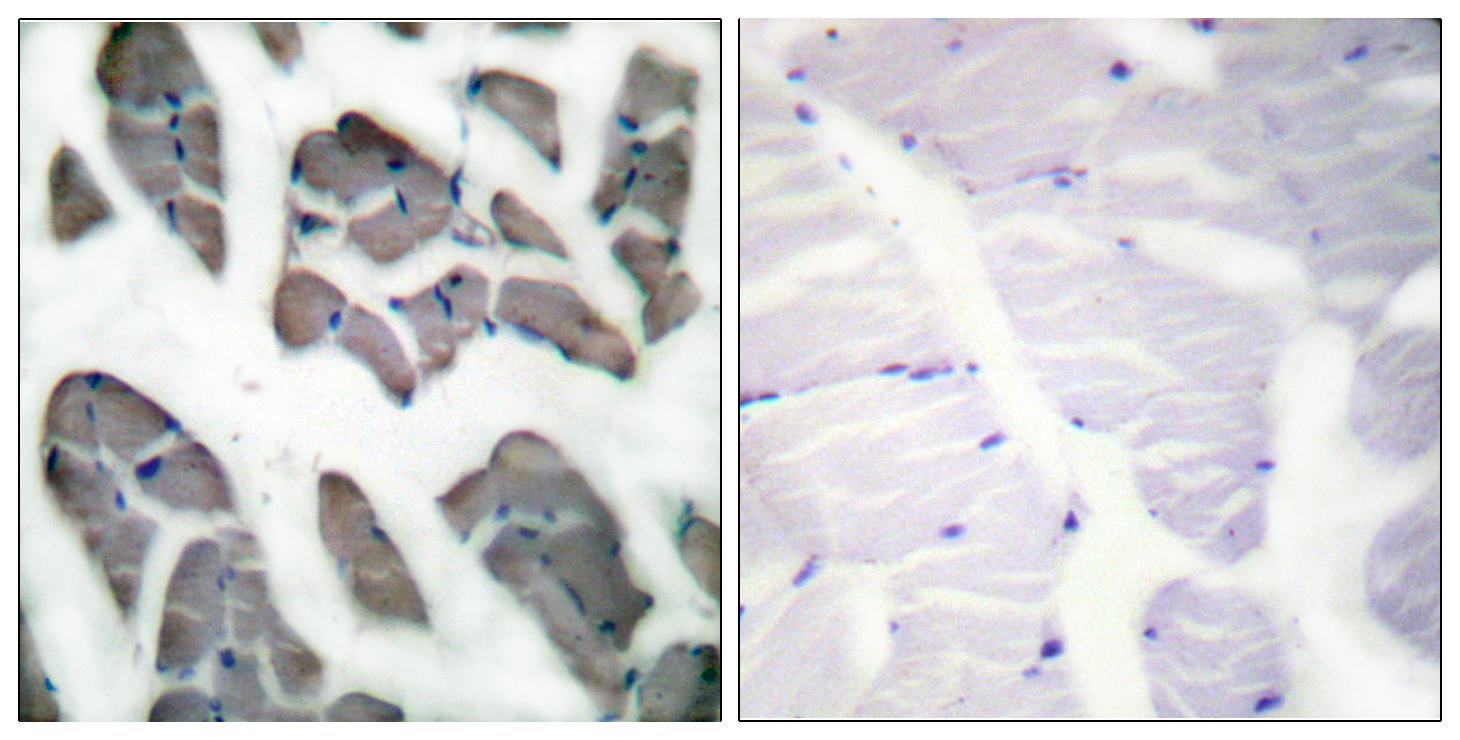 ACTG2 Antibody (OAAF01728) in Human muscle cells using Immunohistochemistry