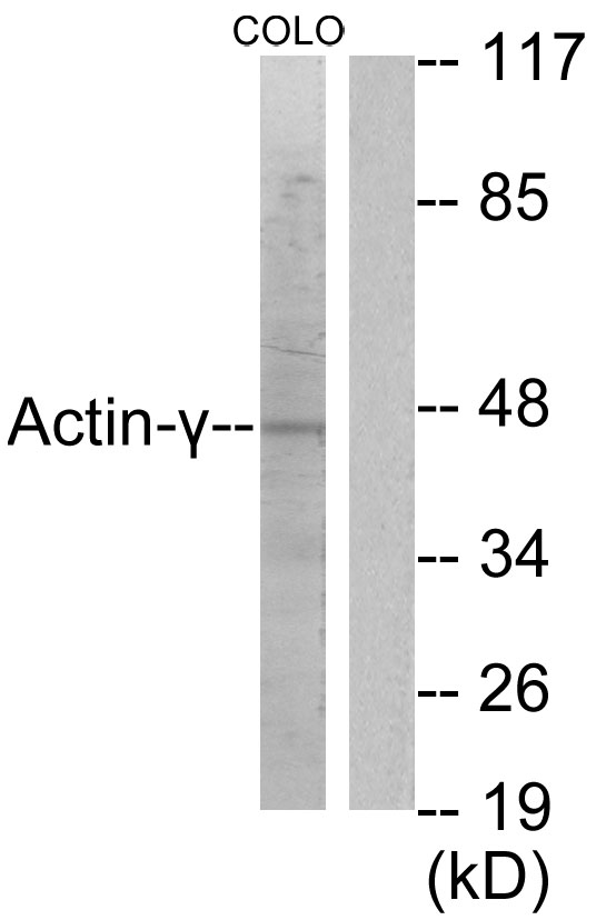 ACTG2 Antibody (OAAF01728) in COLO205 cells using Western Blot