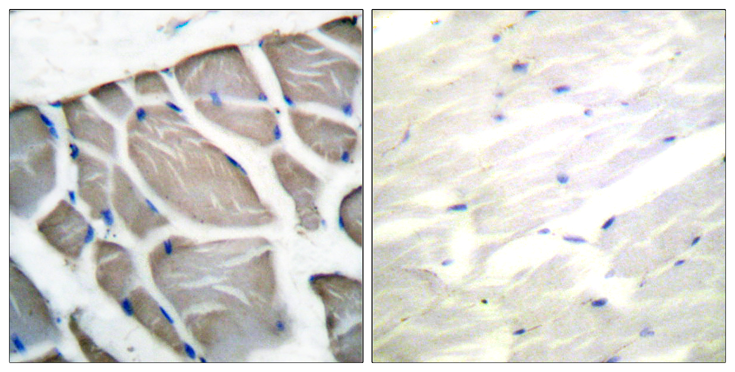 ACTB Antibody (OAAF01729) in Human skeletal muscle cells using Immunohistochemistry