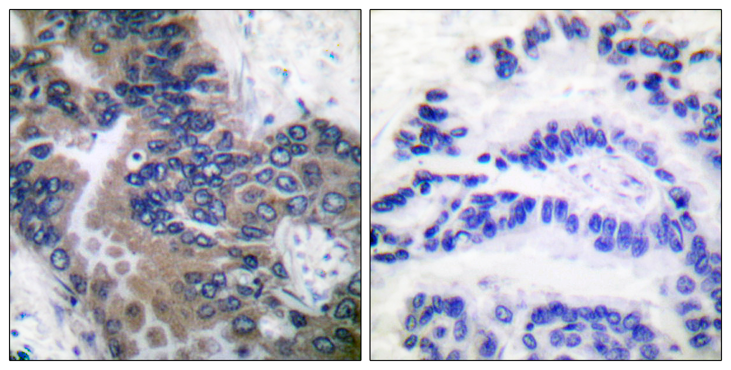 APAF1 Antibody (OAAF01733) in Human lung carcinoma cells using Immunohistochemistry