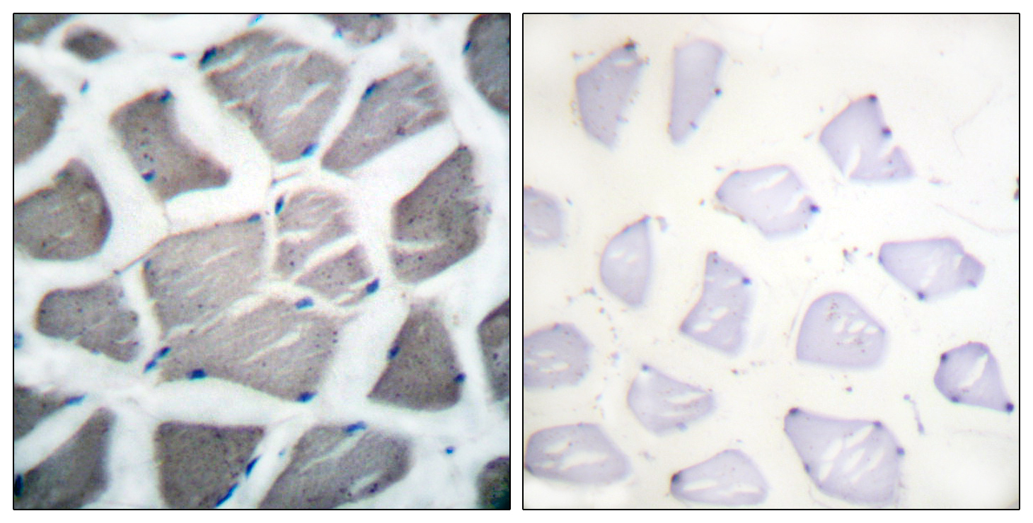 BAK1 Antibody (OAAF01736) in Human skeletal muscle cells using Immunohistochemistry