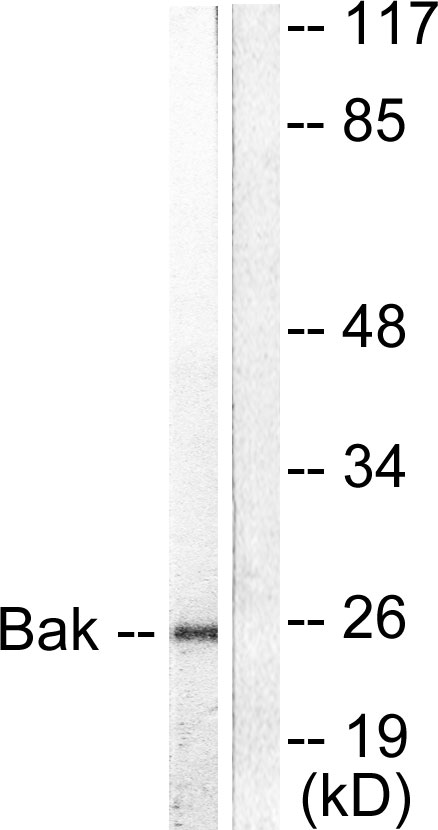 BAK1 Antibody (OAAF01736) in 293 cells using Western Blot