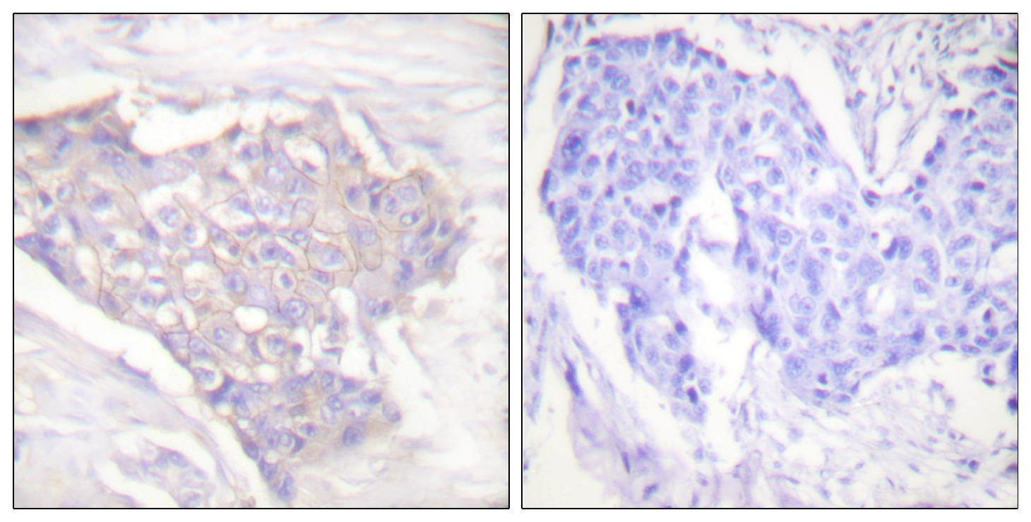BCL2L11 Antibody (OAAF01738) in Human breast carcinoma cells using Immunohistochemistry