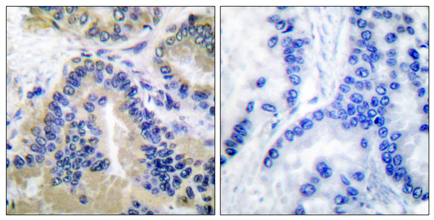CASP10 Antibody (OAAF01739) in Human lung carcinoma cells using Immunohistochemistry