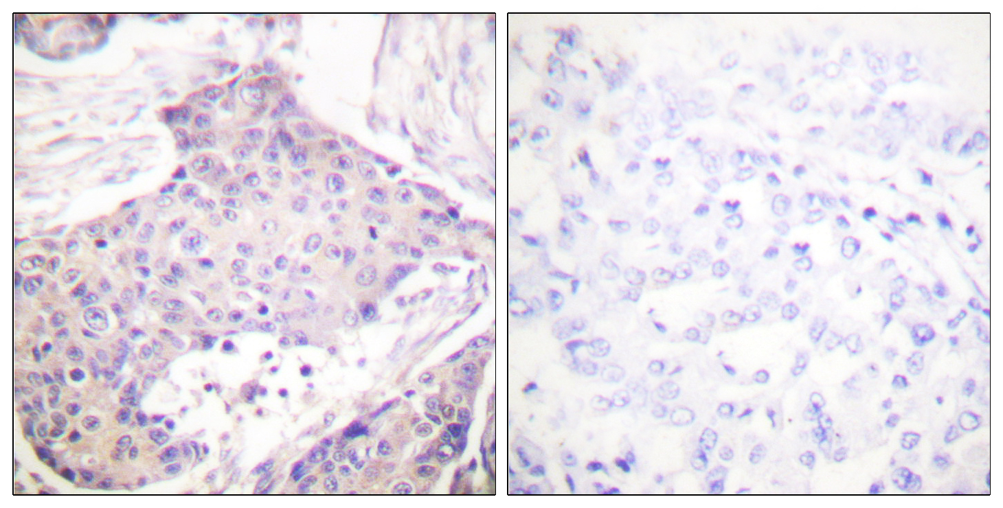 CARD6 Antibody (OAAF01740) in Human breast carcinoma cells using Immunohistochemistry