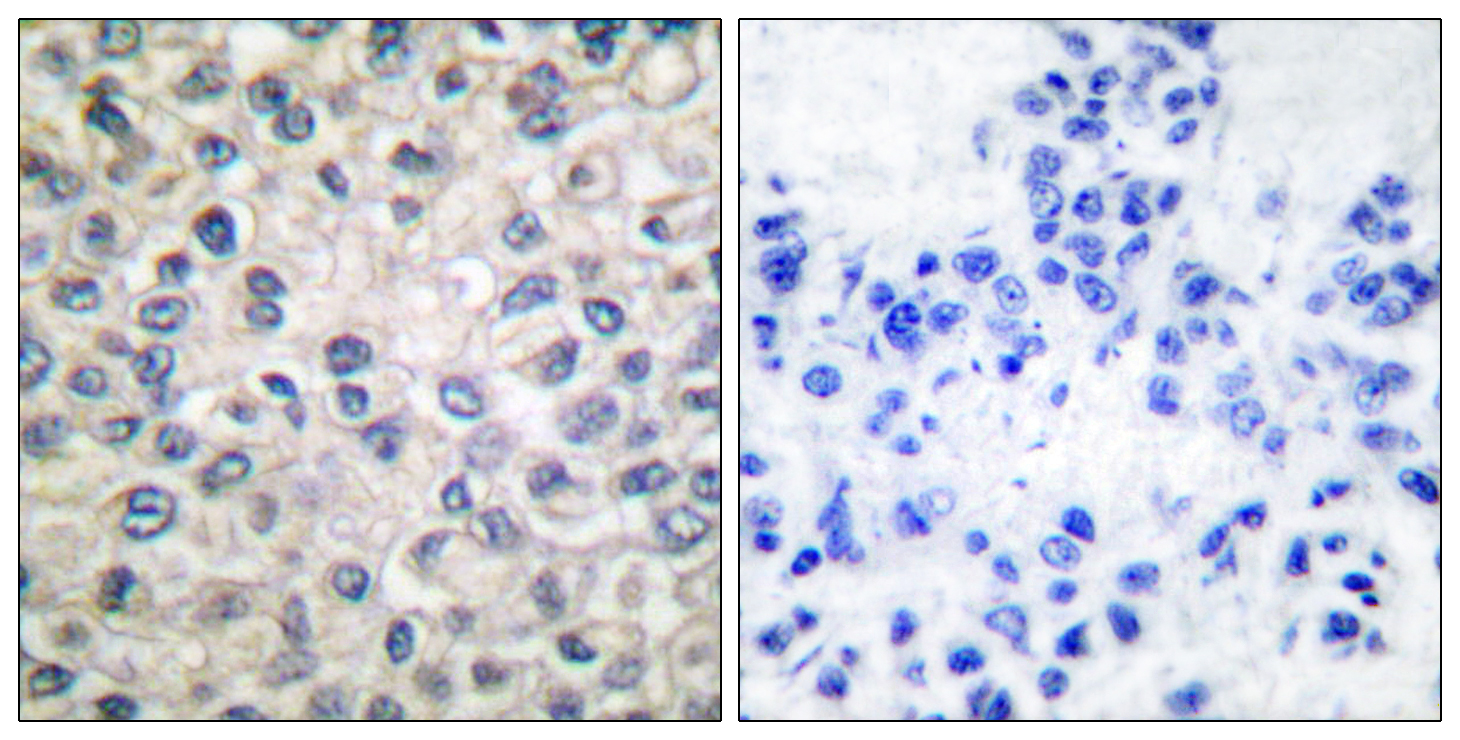 CTNNA1 Antibody (OAAF01741) in Human breast carcinoma cells using Immunohistochemistry