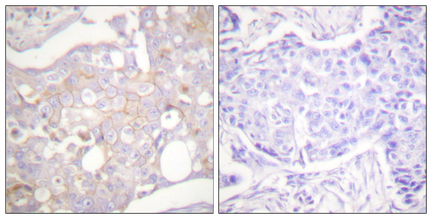 CLDN4 Antibody (OAAF01744) in Human breast carcinoma cells using Immunohistochemistry