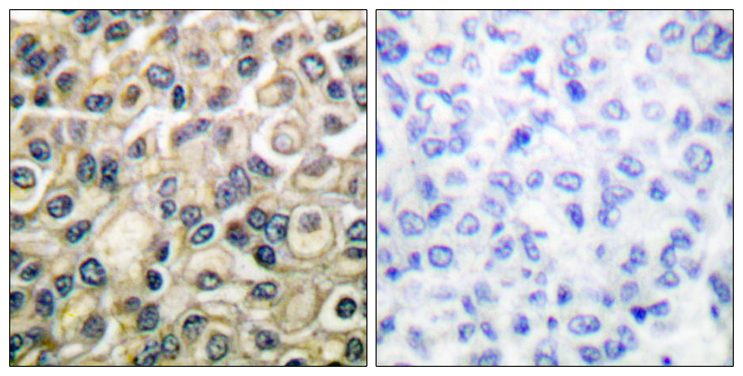 CLDN1 Antibody (OAAF01745) in Human breast carcinoma cells using Immunohistochemistry