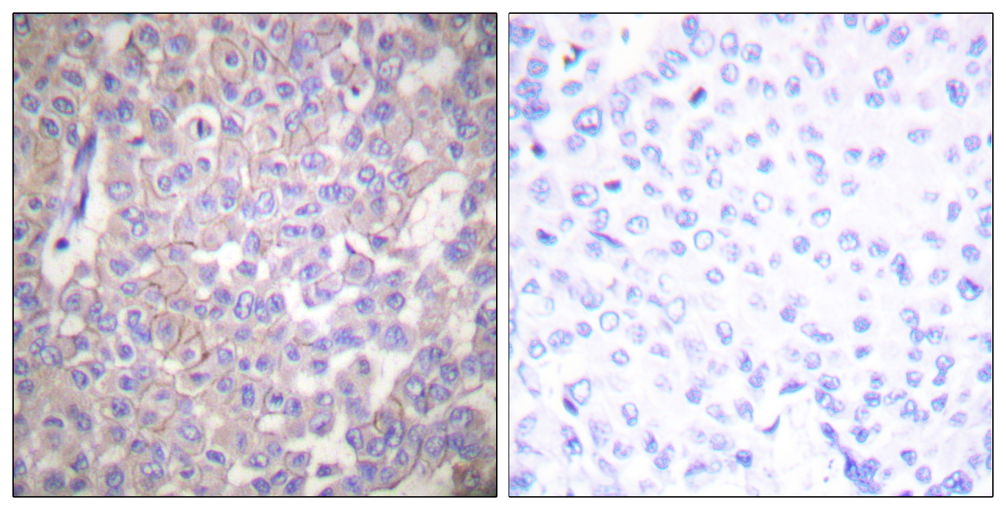 CLDN2 Antibody (OAAF01746) in Human breast carcinoma cells using Immunohistochemistry