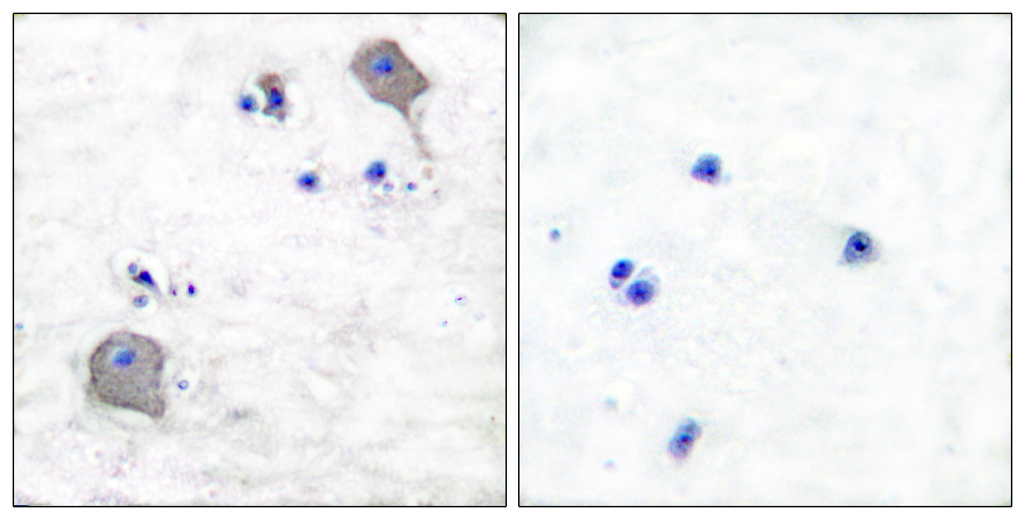 CLDN5 Antibody (OAAF01748) in Human brain cells using Immunohistochemistry
