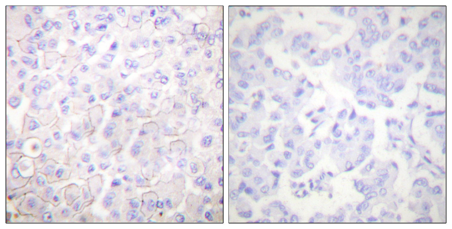CDH1 Antibody (OAAF01751) in Human breast carcinoma cells using Immunohistochemistry