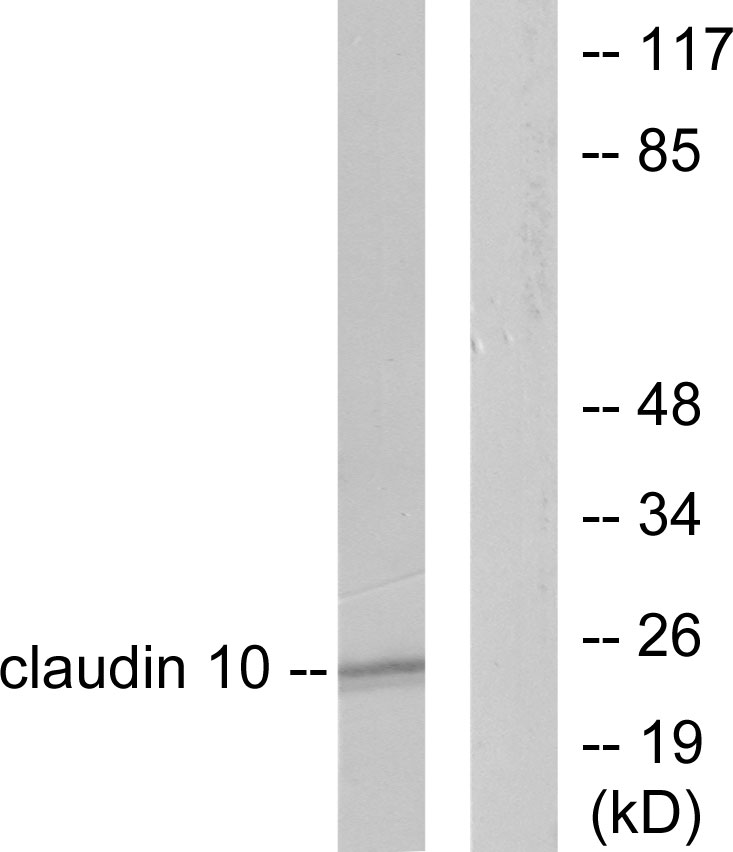 CLDN10 Antibody (OAAF01754) in LOVO cells using Western Blot