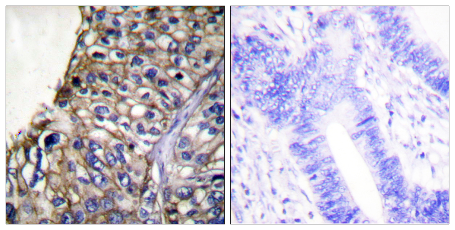 CLDN7 Antibody (OAAF01756) in Human lung carcinoma cells using Immunohistochemistry