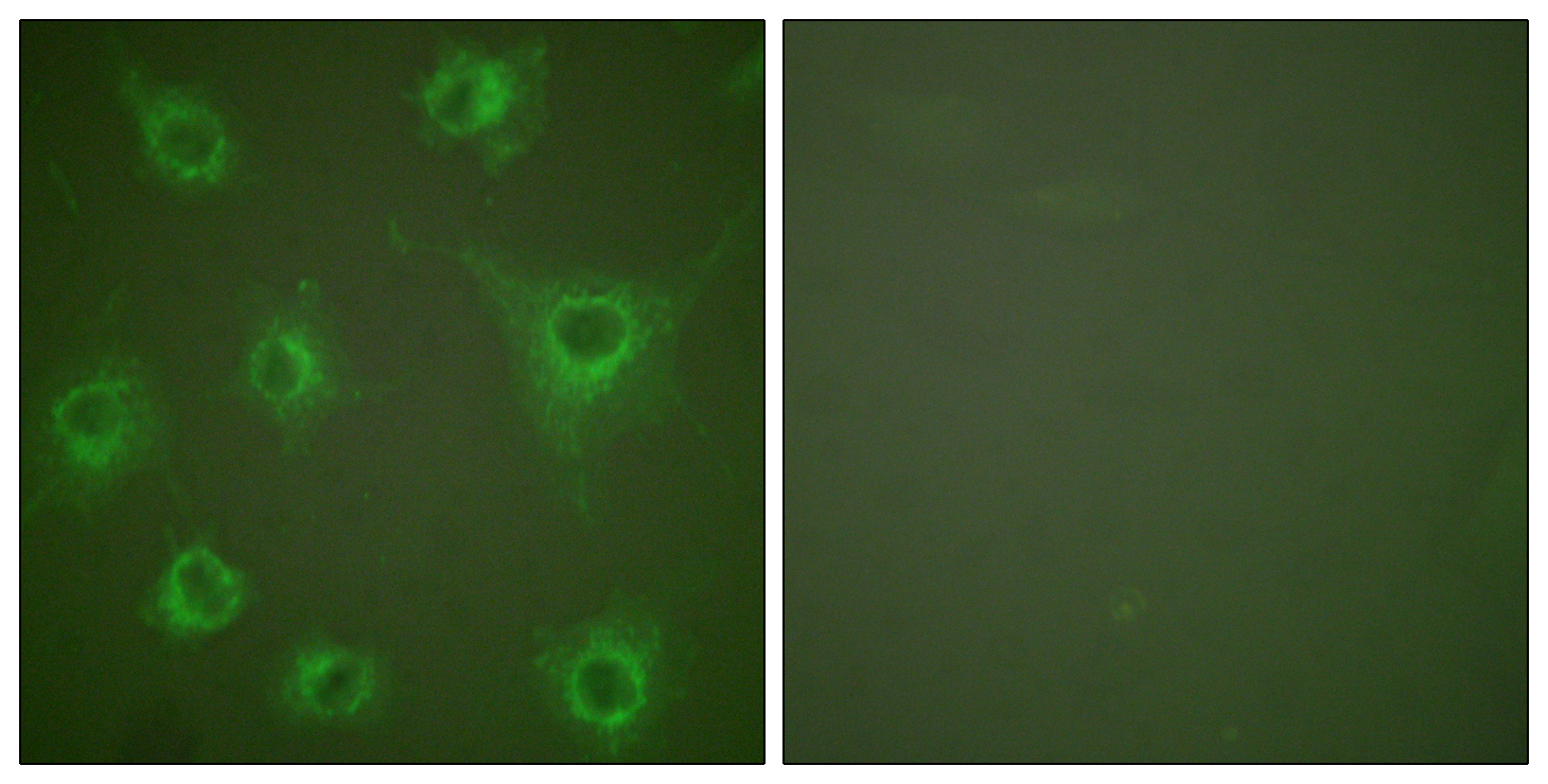 COL2A1 Antibody (OAAF01758) in COS7 cells using Immunofluorescence